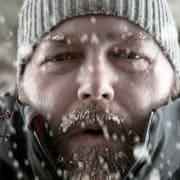 Hypothermia photo
